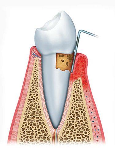 periodontitis-stage3